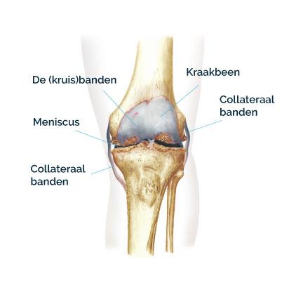 Knie met knieartrose - CortoClinics